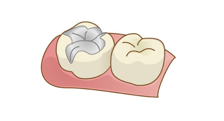 メタルインレー(銀歯)