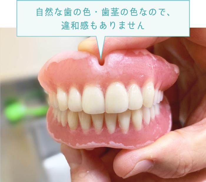 自然な歯の色・歯茎の色なので、違和感もありません