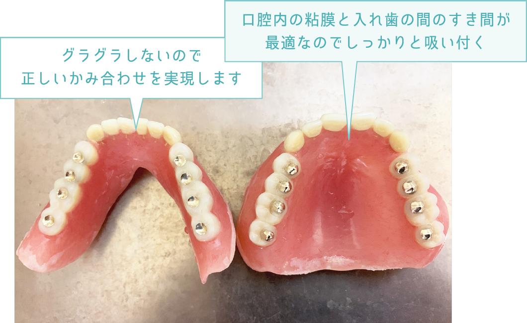 グラグラしないので正しいかみ合わせを実現します 口腔内の粘膜と入れ歯の間のすき間が最適なのでしっかりと吸い付く