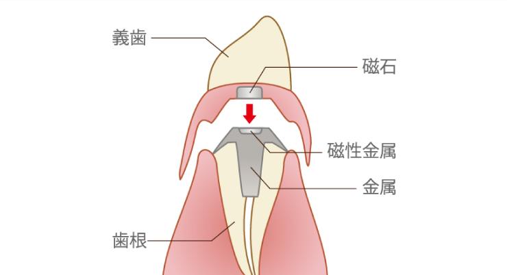 マグネット式入れ歯