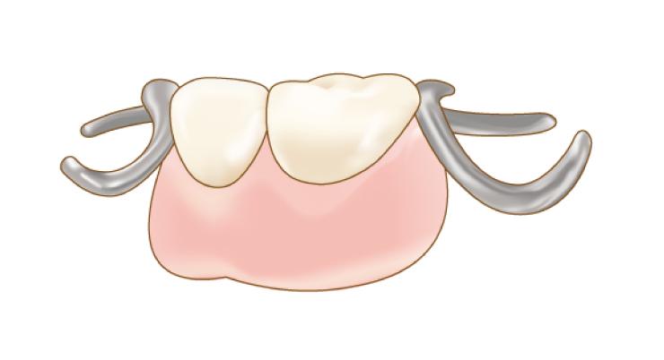 金属の部分入れ歯