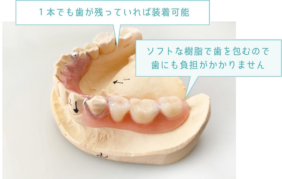 1本でも歯が残っていれば装着可能 ソフトな樹脂で歯を包むので歯にも負担がかかりません